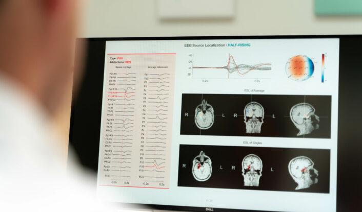 Epilog advanced EEG analysis electrical source imaging
